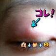 瞼に…蚊の跡